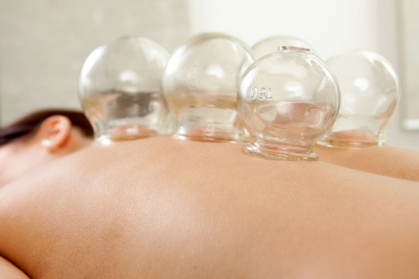 CUPPING THERAPY VENTOUSES CHINOISES